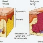 healthy skin vs skin cancer