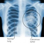 lung cancer Xray